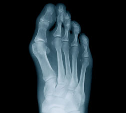 Foot X-ray with Bunions